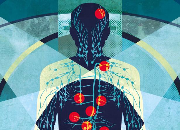 PET Scans - The Lancet Oncology.jpeg